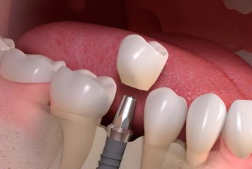 Implant borne single tooth treatment