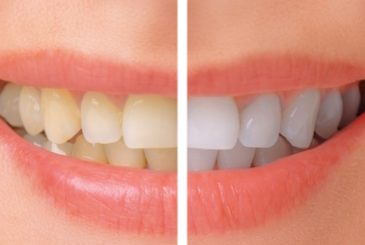 Whitening-before-after-mrqfwjc5di7z5jsx2o5vs7s1xtouvxsua4nmnqt2l0