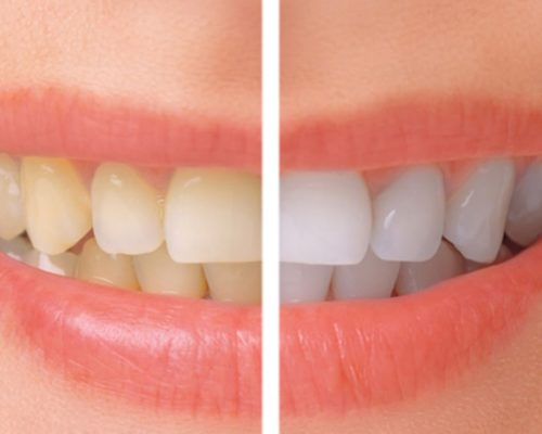 Whitening before after