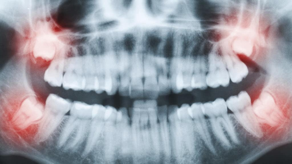wisdom teeth x-rayax139_4faf_9